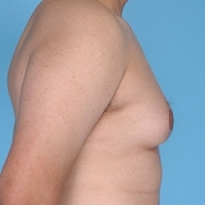 Before Photo - Gynecomastia - Case #2625 - Male Breast Reduction - Oblique View