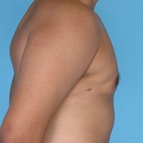 After Photo - Gynecomastia - Case #2625 - Male Breast Reduction - Oblique View