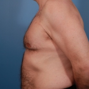 After Photo - Gynecomastia - Case #2584 - Gynecomastia Treatment - Lateral View