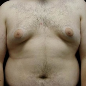 Before Photo - Gynecomastia - Case #2849 - Gynecomastia Reduction via Liposuction - Frontal View