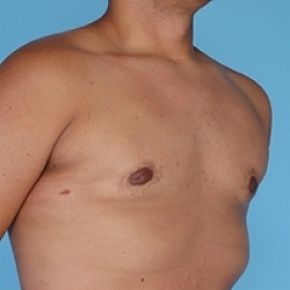After Photo - Gynecomastia - Case #2625 - Male Breast Reduction - Lateral View