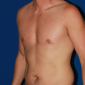 After Photo - Gynecomastia - Case #2782 - Gynecomastia male breast reduction - Oblique View