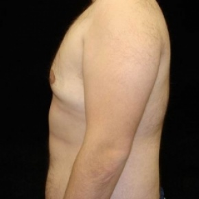 After Photo - Gynecomastia - Case #2849 - Gynecomastia Reduction via Liposuction - Lateral View