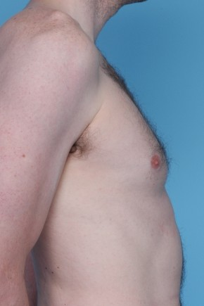 Before Photo - Gynecomastia - Case #3456 - Male Breast Reduction - Oblique View