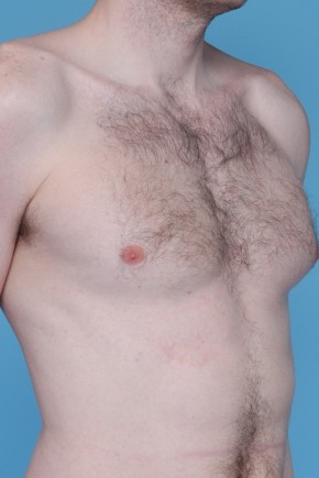Before Photo - Gynecomastia - Case #3456 - Male Breast Reduction - Posterior Oblique View