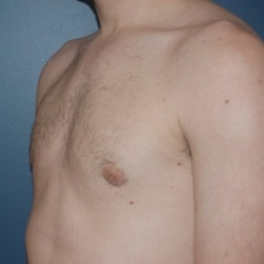 After Photo - Gynecomastia - Case #3468 - Bilateral gynecomastia - Oblique View