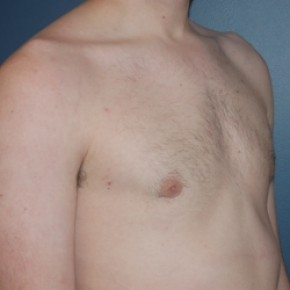After Photo - Gynecomastia - Case #3468 - Bilateral gynecomastia - Lateral View
