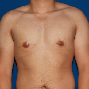 After Photo - Gynecomastia - Case #2783 - Gynecomastia male breast reduction - Frontal View