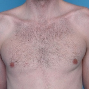 After Photo - Gynecomastia - Case #2624 - Male Breast Reduction - Frontal View