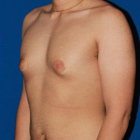Before Photo - Gynecomastia - Case #2783 - Gynecomastia male breast reduction - Oblique View