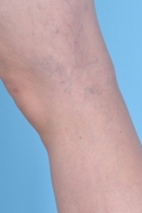 After Photo - Spider Vein Treatment - Case #2676 - Oblique View
