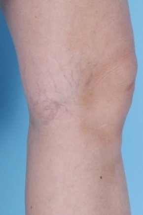 Before Photo - Spider Vein Treatment - Case #2676 - Lateral View