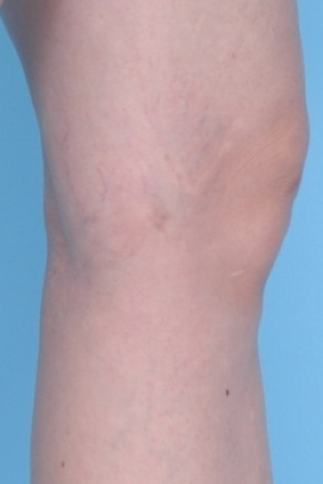 After Photo - Spider Vein Treatment - Case #2676 - Lateral View