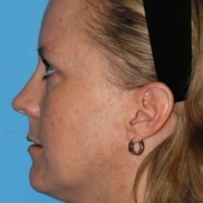 Before Photo - Lip Enhancement - Case #2707 - Lip Grafting - Lateral View