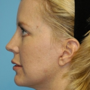After Photo - Lip Enhancement - Case #2707 - Lip Grafting - Lateral View