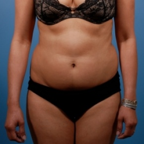 Before Photo - Liposuction - Case #2482 - Liposuction: Abdomen & Flanks - Frontal View