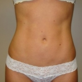 After Photo - Liposuction - Case #2577 - Frontal View