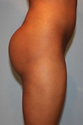 After Photo - Fat Transfer - Case #3481 - Large Fat Graft to Buttocks - Lateral View