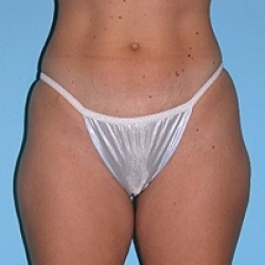 Before Photo - Liposuction - Case #2609 - Frontal View