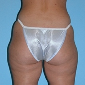 Before Photo - Liposuction - Case #2609 - Oblique View