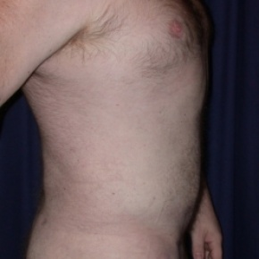 After Photo - Liposuction - Case #2559 - Liposuction: Male Lipodystrophy - Lateral View