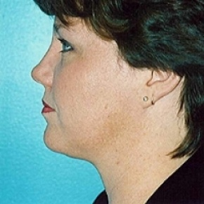 After Photo - Liposuction - Case #2610 - Oblique View