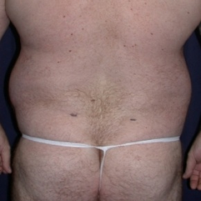 Before Photo - Liposuction - Case #2559 - Liposuction: Male Lipodystrophy - Posterior View