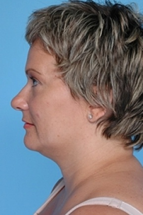 After Photo - Liposuction - Case #2615 - Lateral View
