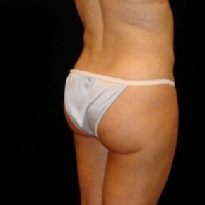 After Photo - Liposuction - Case #2851 - Liposuction of Abdomen, Waist, Flanks, Inner and Outer Thighs - Posterior Oblique View