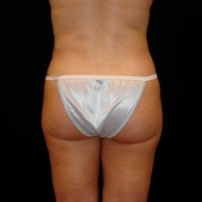 After Photo - Liposuction - Case #2851 - Liposuction of Abdomen, Waist, Flanks, Inner and Outer Thighs - Posterior View