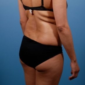 Liposuction Before Amp After Photos Case 2482