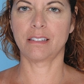 After Photo - Liposuction - Case #2617 - Frontal View