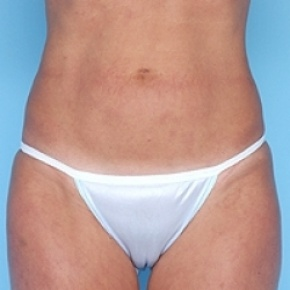 After Photo - Liposuction - Case #2619 - Frontal View