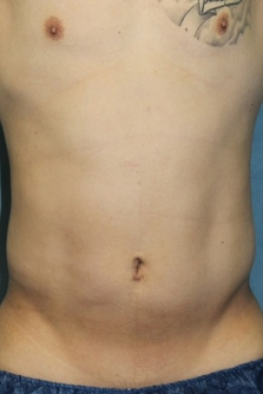 After Photo - Liposuction - Case #2983 - Frontal View