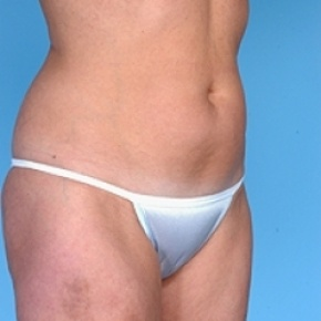 Before Photo - Liposuction - Case #2619 - Lateral View