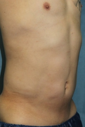 After Photo - Liposuction - Case #2983 - Oblique View