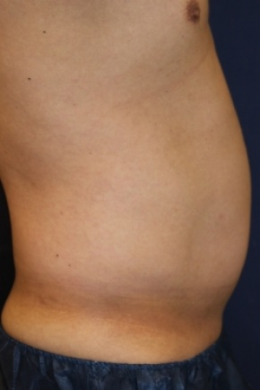 Before Photo - Liposuction - Case #2983 - Lateral View