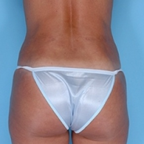 After Photo - Liposuction - Case #2619 - Posterior Oblique View