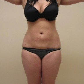 After Photo - Liposuction - Case #3451 - Frontal View