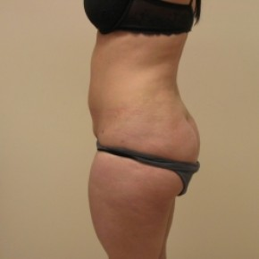 After Photo - Liposuction - Case #3451 - Lateral View