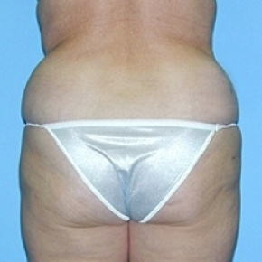 Before Photo - Liposuction - Case #2620 - Posterior Oblique View