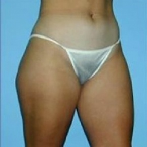 Before Photo - Liposuction - Case #2606 - Oblique View