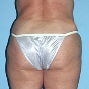After Photo - Liposuction - Case #2620 - Posterior Oblique View