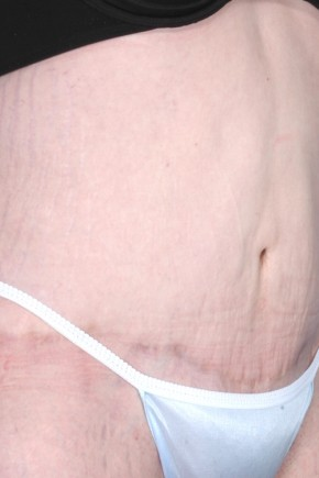 After Photo - Tummy Tuck - Case #3461 - Abdominoplasty and Liposuction - Oblique View