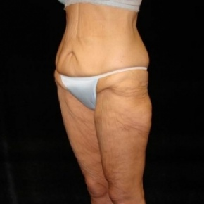 Before Photo - Lower Body Lift - Case #2842 - Posterior Oblique View