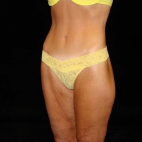 After Photo - Lower Body Lift - Case #2842 - Posterior Oblique View