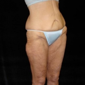 Before Photo - Lower Body Lift - Case #2842 - Posterior View