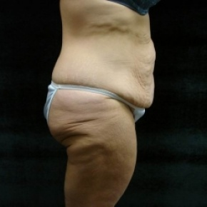 Before Photo - Lower Body Lift - Case #2843 - Oblique View