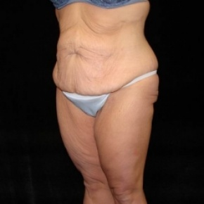 Before Photo - Lower Body Lift - Case #2843 - Posterior Oblique View