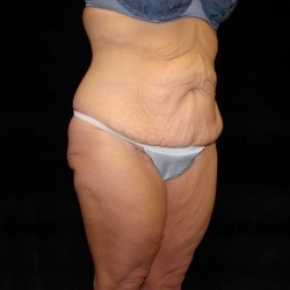 Before Photo - Lower Body Lift - Case #2843 - Posterior View